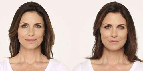 Unretouched photo of LeAnne - Age 46, before and after RADIESSE.