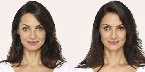 Unretouched photo of Andrea - Age 41, before and after RADIESSE.