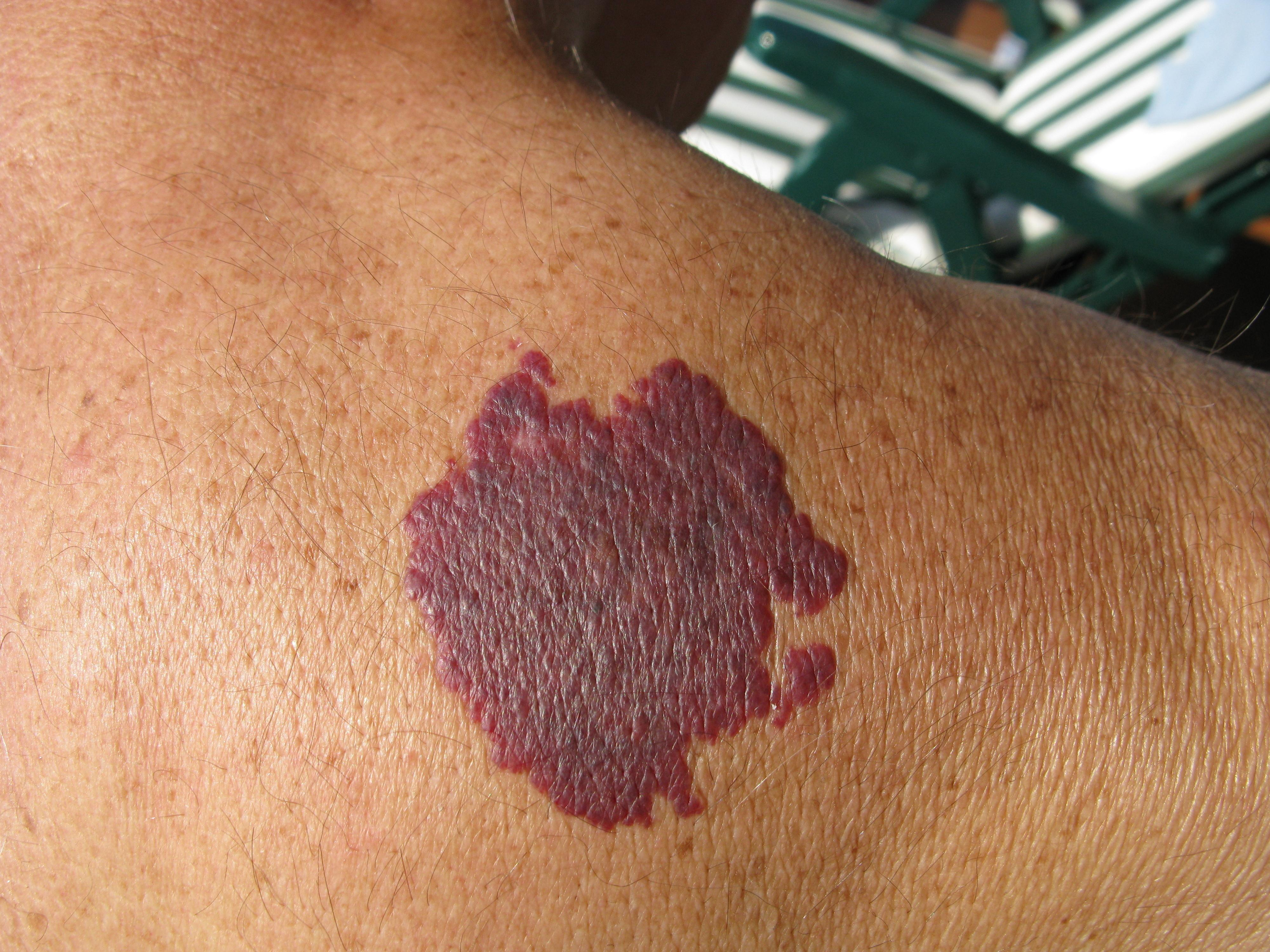 When To Consider Birthmark Removal Dermspecialists