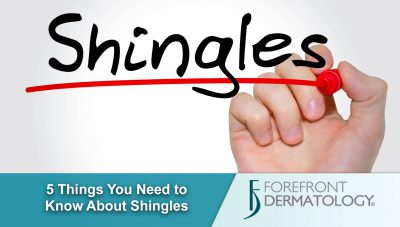 5 Things You Need to Know About Shingles
