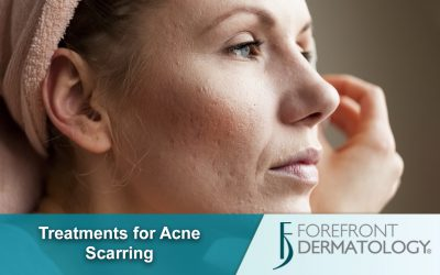 Treatments for Acne Scarring