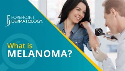 Get the Facts: Melanoma Skin Cancer