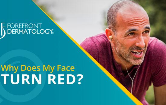 Why Does My Skin Turn Red When I Exercise?