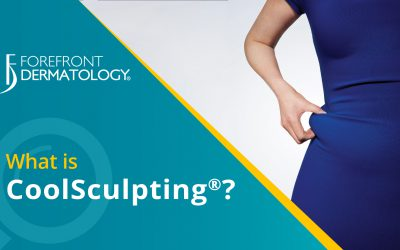 What is CoolSculpting®?